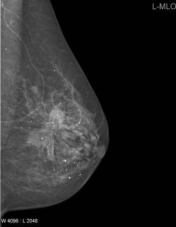 Breast Cancer Classifier